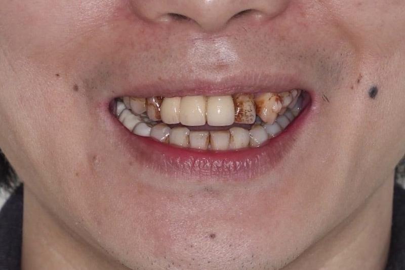 嚴重牙周病-牙周病治療-牙齒染色-舊假牙不密合-牙周病專科-楊梅牙周病-推薦