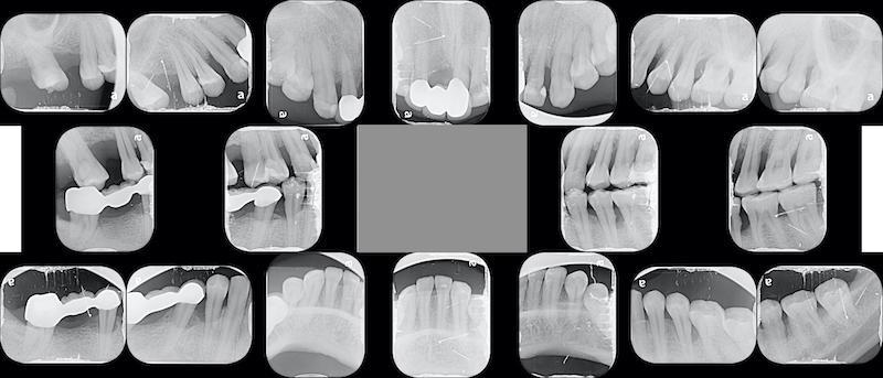 嚴重牙周病-牙周病治療-第一階段牙周病治療-全口X光片-牙周病專科-楊梅牙周病-推薦
