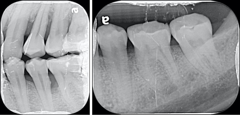 嚴重牙周病-牙周病治療-第二階段牙周再生手術-局部X光片-牙周病專科-楊梅牙周病-推薦