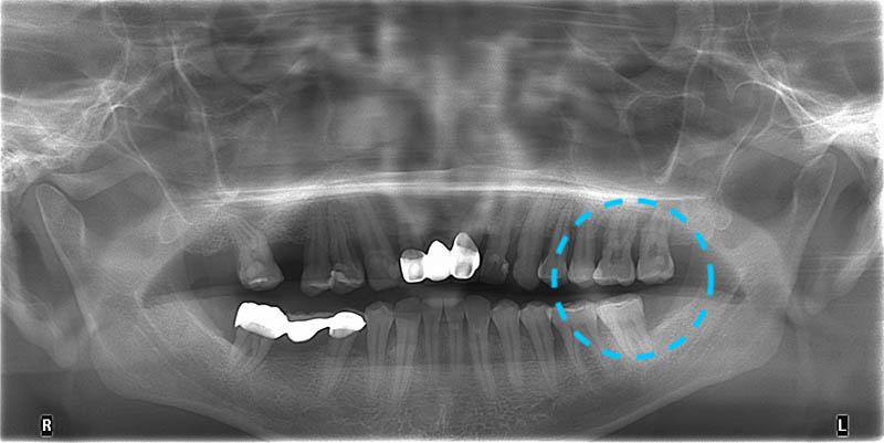 嚴重牙周病-牙周病治療-齒槽骨破壞嚴重-牙周病專科-楊梅牙周病-推薦