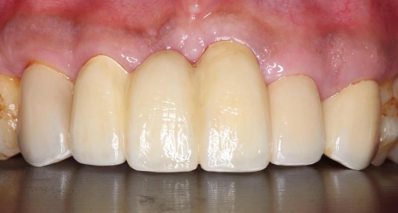 嚴重牙周病-牙周病治療-DSD微笑設計-全瓷假牙-陶瓷貼片-牙周病專科-楊梅牙周病-推薦