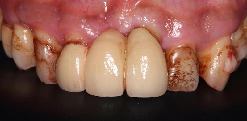 嚴重牙周病-牙周病治療-DSD微笑設計-牙周病專科-楊梅牙周病-推薦