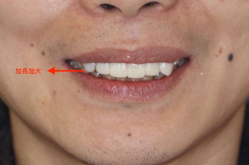 嚴重牙周病-牙周病治療-DSD數位微笑設計-模擬試戴臨時假牙-1-牙周病專科-楊梅牙周病-推薦