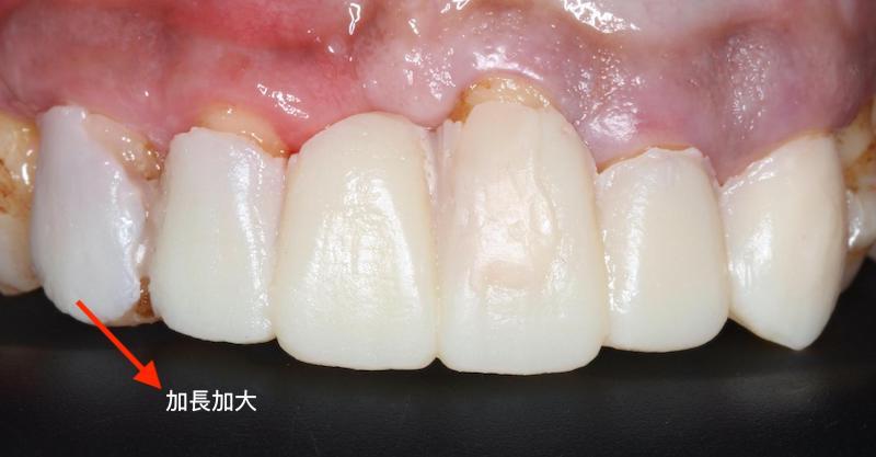 嚴重牙周病-牙周病治療-DSD數位微笑設計-模擬試戴臨時假牙-2-牙周病專科-楊梅牙周病-推薦