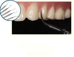 牙周病治療-牙周病治療第一階段-MAPCARE牙周病治療方案-清除牙結石-桃園牙周專科-葉立維醫師