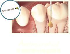牙周病治療-牙周病治療第一階段-MAPCARE牙周病治療方案-牙周病藥膏-桃園牙周專科-葉立維醫師