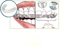 牙周病治療-牙周病治療第一階段-MAPCARE牙周病治療方案-牙周維護-桃園牙周專科-葉立維醫師
