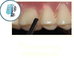 牙周病治療-牙周病治療第一階段-MAPCARE牙周病治療方案-雷射牙周病-桃園牙周專科-葉立維醫師