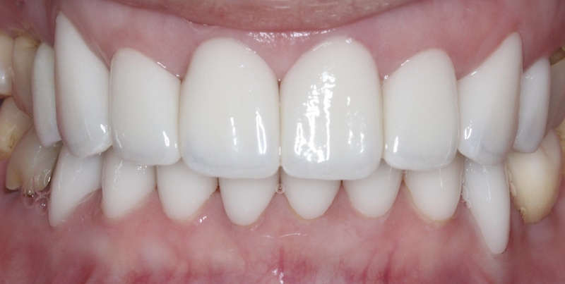 水雷射牙齦-陶瓷貼片-全瓷冠-治療後前牙外觀-葉立維醫師-桃園