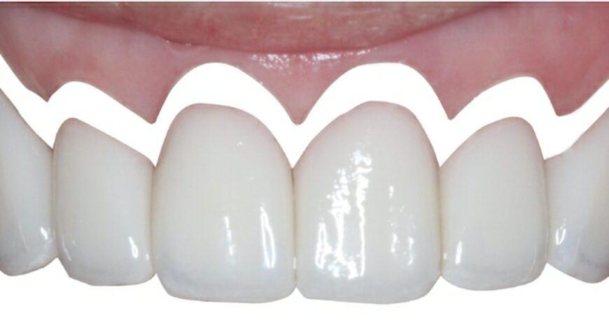 微創水雷射牙齦整形推薦: 牙齦萎縮治療/牙冠增長術/陶瓷貼片/DSD