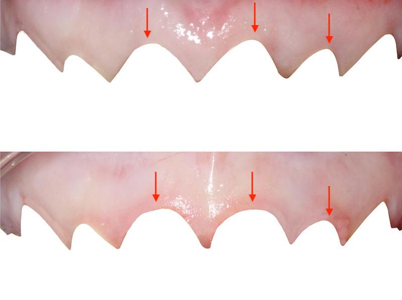 水雷射牙齦-陶瓷貼片-水雷射牙冠增長術-手術前後牙齦曲線比較-葉立維醫師-桃園