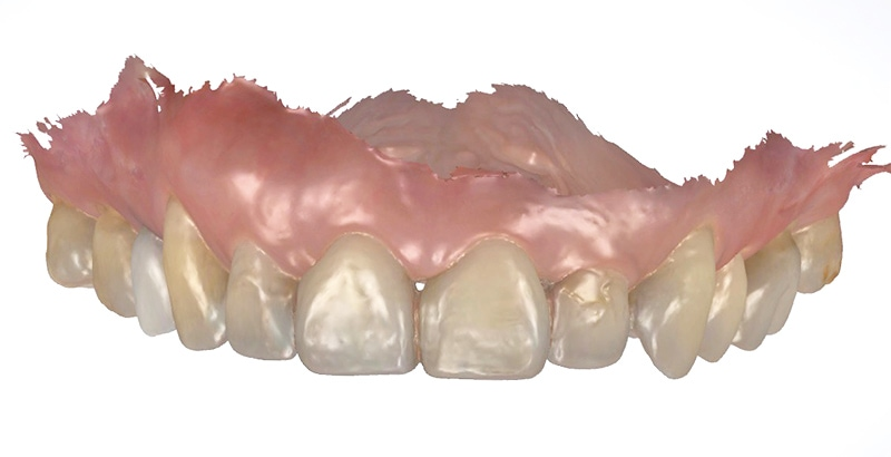 水雷射牙齦-陶瓷貼片-治療前-上顎數位牙齒模型-葉立維醫師-桃園