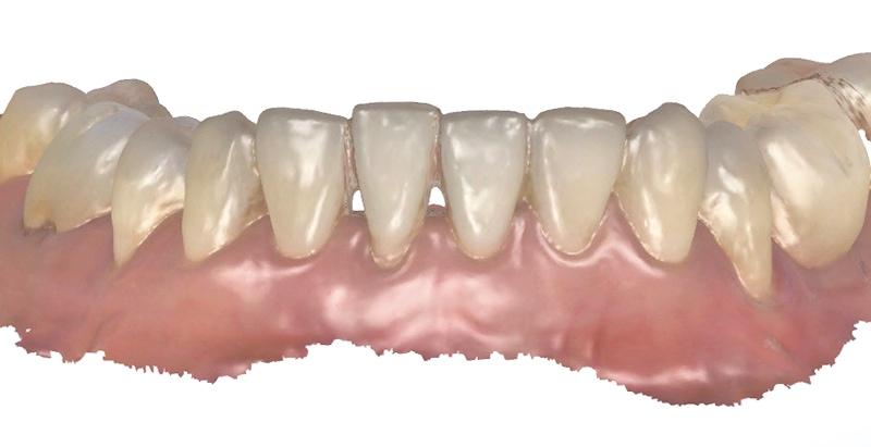 水雷射牙齦-陶瓷貼片-治療前-下顎數位牙齒模型-葉立維醫師-桃園