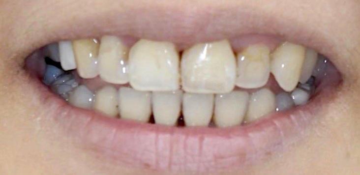 水雷射牙齦-陶瓷貼片-治療前-前牙正面照-葉立維醫師-桃園