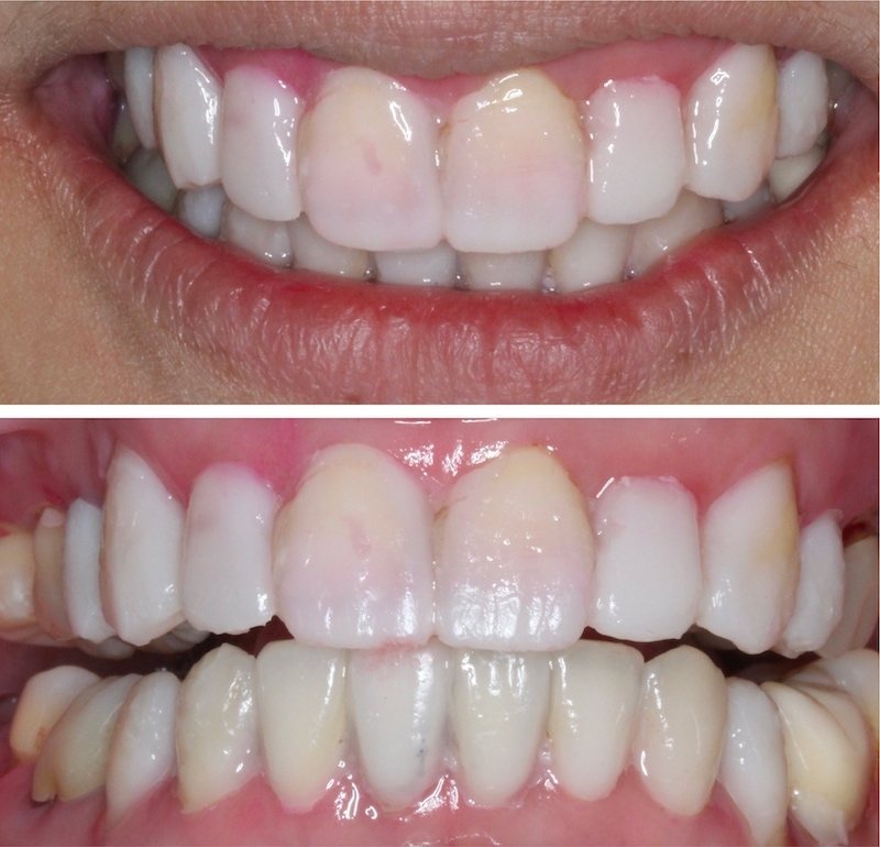 水雷射牙齦-陶瓷貼片-治療前-貼片設計試戴模擬-葉立維醫師-桃園